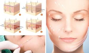Cấy collagen vào da mặt giúp trẻ hóa làn da
